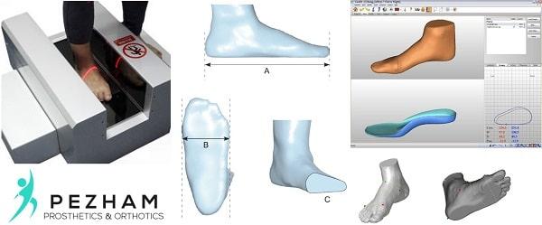 اسکن سه بعدی پا.طراحی و ساخت کفی طبی