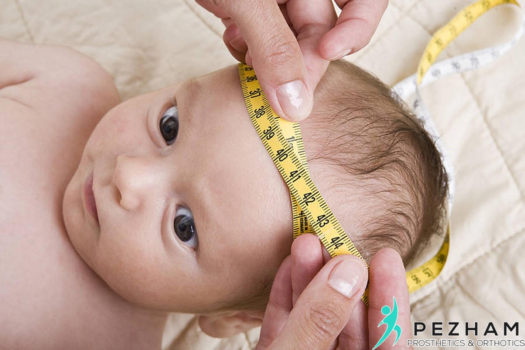انواع بدشکلی جمجمه.کلاه اصلاحی نوزادان