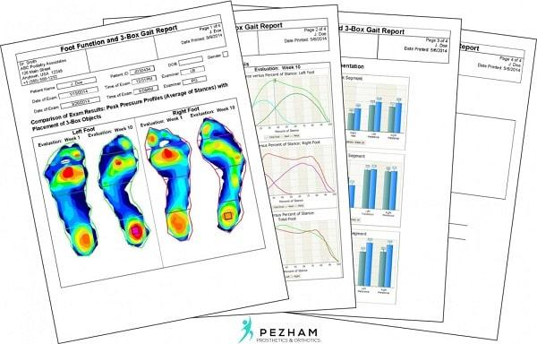 اسکن کف پا.اسکنر فشاری کف پا.تحلیل اسکن کف پا.کفی طبی
