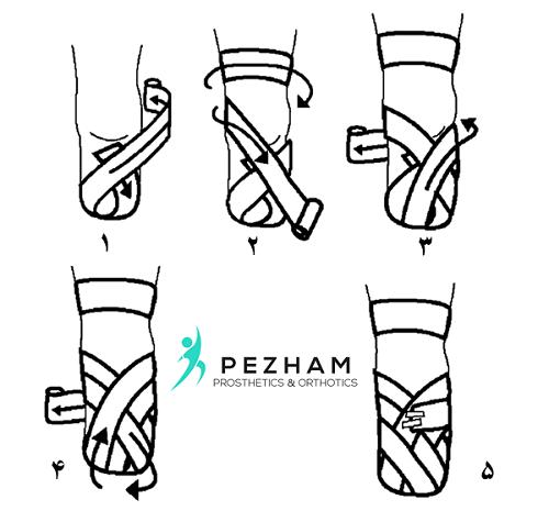 نحوه صحیح بانداژ کردن قطع عضو زیر زانو.دریافت پروتز پا.مراقبت های بعد از قطع عضو