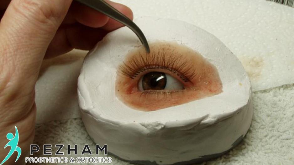 پروتز چشم.پروتز زیبایی چشم.چشم مصنوعی