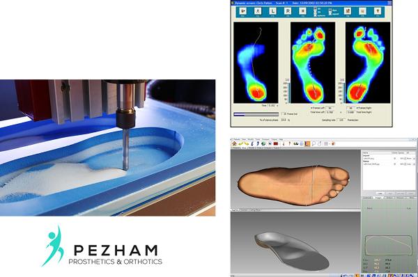 اسکن کف پا.ساخت کفی طبی.پرینتر سه بعدی ساخت کفی