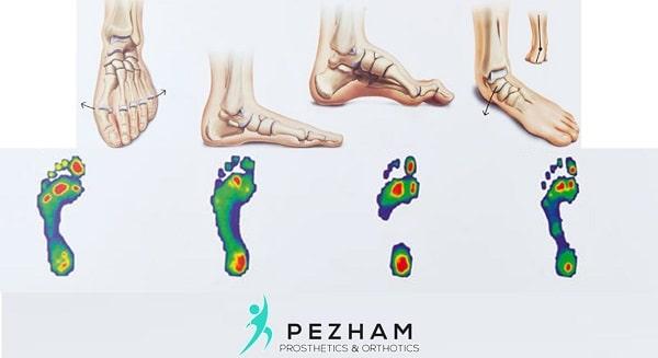 اسکن کف پا.اسکنر فشاری پا.الگوی های فشاری کف پا