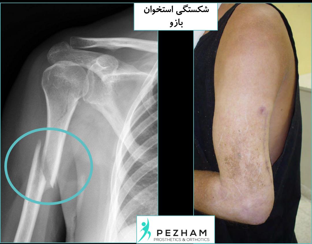 شکستگی استخوان بازو.بریس