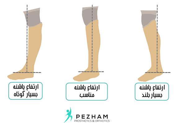 انتخاب کفش مناسب با پروتز پا.پروتز زیر زانو.ساخت پروتز زیر زانو.ساخت پای مصنوعی